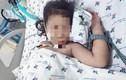 Sốc sốt xuất huyết trẻ nguy kịch: Khi nào cần đi viện?