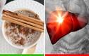 8 siêu thực phẩm mà chúng ta không nên ăn quá nhiều