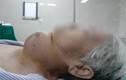 Tế bào ung thư sinh sôi suốt 50 năm trên cổ người phụ nữ