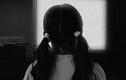 Mẹ ruột và tình nhân đánh gãy xương bé gái 6 tuổi ở Trung Quốc