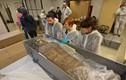 Khó giải xác ướp mang thai đầu tiên trên thế giới