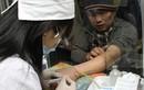 Nhóm máu nào có nguy cơ mắc bệnh ung thư cao nhất?