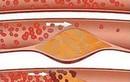 Rối loạn lipit máu có liên quan tới đột quỵ?