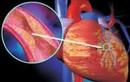 Cách chẩn đoán suy mạch vành
