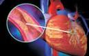 Xơ vữa mạch vành 70% có nên đặt stent?