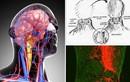 Bác sĩ Việt Nam nói về tính khả thi của ca ghép đầu người