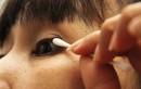 Phải làm gì khi có rận ký sinh trên mí mắt?