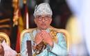 Nhà vua Malaysia nhập viện