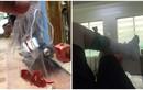 Bệnh nhân tố bác sĩ bỏ quên bông trong vết thương