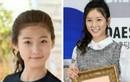 Sao nhí Kim Sae Ron bị tố phẫu thuật thẩm mỹ