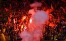 Fan nữ trúng pháo sáng CĐV Nam Định: Xử lý nghiêm sân Hàng Đẫy