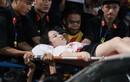 Fan nữ trúng pháo sáng CĐV Nam Định: Chủ tịch TP Hà Nội chỉ đạo gì?