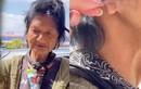 Thúy Nga hoảng hốt phát hiện ca sĩ Kim Ngân bị cắt một bên tai