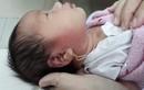 Xỏ lỗ tai, bé 15 ngày tuổi suýt chết