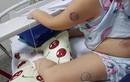 Bị gà mổ, bé 5 tuổi ở Quảng Bình nhiễm khuẩn Whitmore