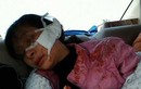 Video: Toàn cảnh hiện trường nữ sinh lớp 11 bị rạch mặt dã man