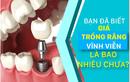 Bạn đã biết giá trồng răng vĩnh viễn là bao nhiêu chưa?