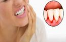 Dấu hiệu của răng miệng báo động tim, gan, thận không khỏe
