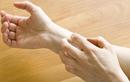 4 dấu hiệu trên bàn tay cảnh báo đường huyết cao