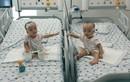 Vui mừng cặp song sinh Trúc Nhi-Diệu Nhi gặp nhau sau 1 tháng tách dính