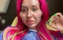 Người mẫu có cặp má lồi lõm kinh dị vì nghiện tiêm filler