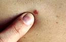 Dấu hiệu nốt ruồi cảnh báo gan và mật đang kêu cứu