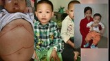Hơn 5 triệu người VN mang gen bệnh máu tan