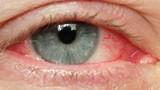 Dịch đau mắt đỏ bùng phát ở Quảng Ngãi