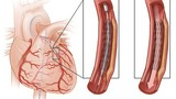 Cách chữa động mạch vành