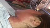 Cảnh giác: Nhập viện vì dị ứng mỹ phẩm