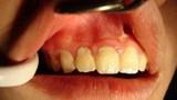 Nhận biết u biểu mô do răng canxi hóa