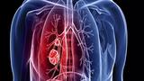 Video: 6 nhóm người chắc chắn mắc ung thư phổi