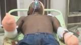 Thiếu niên bị chặt hai tay vì hiếp dâm bé 8 tháng tuổi