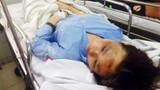 Nghị lực của nữ sinh bị tạt axit từng gây chấn động