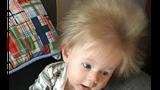 Cậu bé có mái tóc dài kỳ lạ ngay từ khi còn trong bụng mẹ