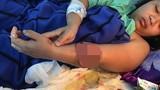 Cô gái 21 tuổi hồi sinh cánh tay kỳ diệu