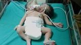 Kỳ lạ bé gái sơ sinh có hai đầu