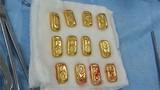 Doanh nhân nuốt 12 thỏi vàng vào bụng để buôn lậu