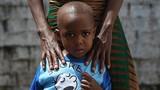 Những người sống sót kỳ diệu trong tâm dịch Ebola