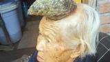 Xôn xao cụ bà 87 tuổi mọc sừng trên đầu dài 13 cm