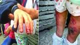 Bé tiểu học bị mẹ kế bạo hành gây phẫn nộ