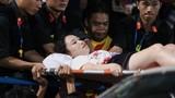 CĐV Nam Định bắn pháo sáng gây thương tích, CĐM nặng lời chỉ trích