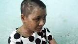 Lộ thêm đòn tra tấn thiếu nữ man rợ của bà chủ mất nhân tính ở Gia Lai