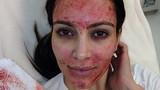 Sự thật sốc: Làm đẹp bằng máu nguy cơ phơi nhiễm HIV