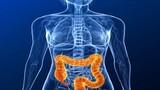 Aspirin giúp bệnh nhân ung thư đại tràng kéo dài sự sống