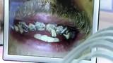 Chàng trai 20 năm không đánh răng và cái kết