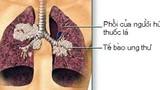 Bí quyết đơn giản giúp tránh xa ung thư phổi