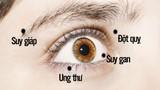 Video: Có dấu hiệu này ở mắt không khám ngay bạn sẽ hối hận cả đời