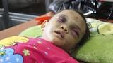 Bé 4 tuổi bị cha mẹ bạo hành: Kẻ thủ ác là cha dượng