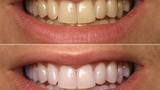 Răng trắng nhanh như sứ với mẹo đơn giản bằng baking soda